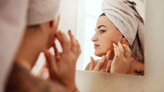 Akne? Na und! Wir berichten über Hautprobleme und warum diese unser Wohlbefin...