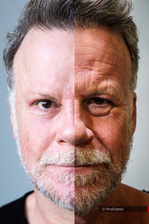 Jenkes Gesichtshälften im direkten Vergleich - Bildquelle: ProSieben