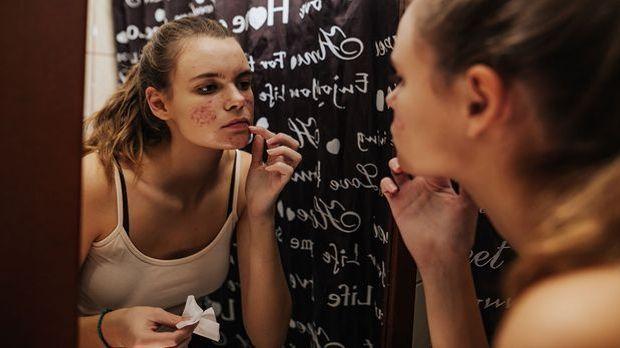 Akne: Hautproblem, aber auch psychische Belastung für viele von uns. Wir sage...